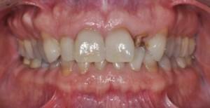 Peri-Implant Esthetics