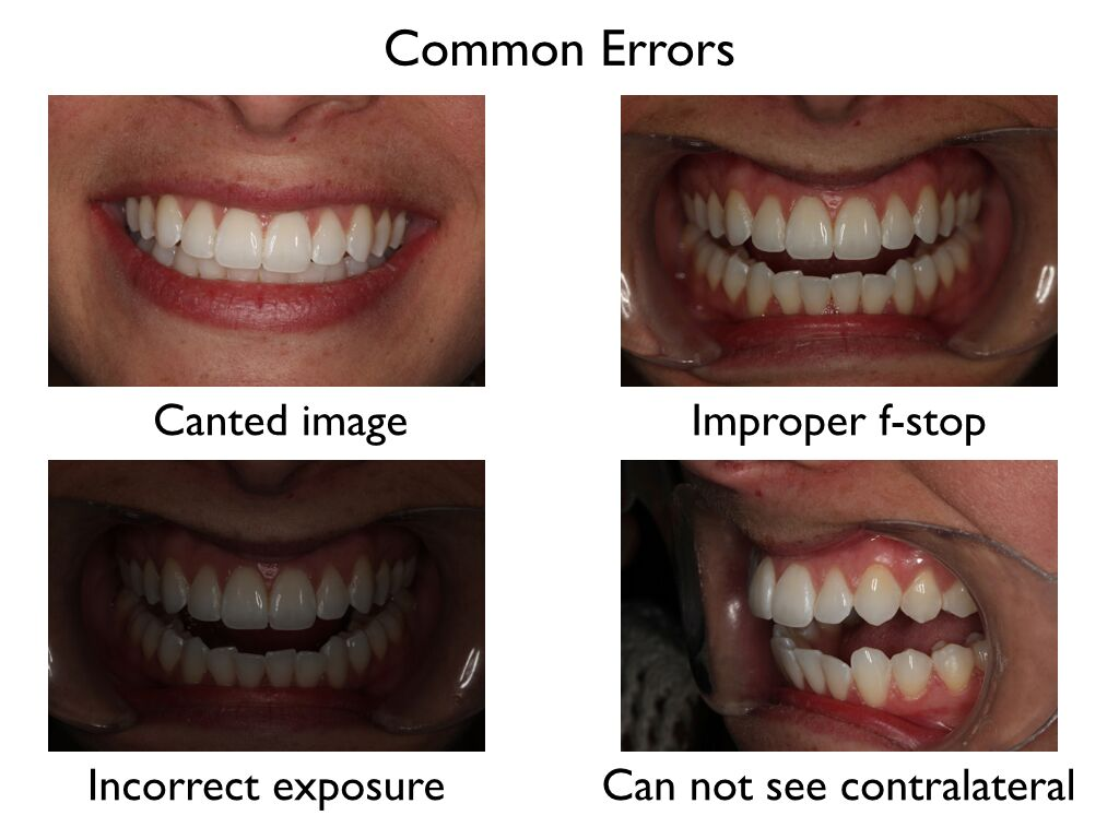 Move Your Patient Tips To Ideal Intra Oral Dental Photography