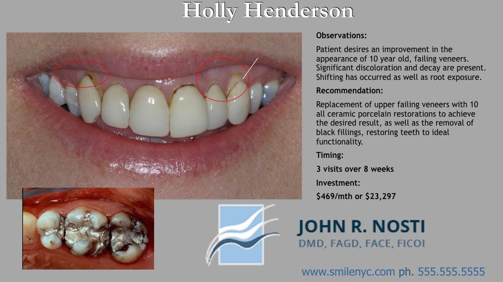 Use visual treatment plans big case presentation part i holly henderson nosti001 copy pronofoot35fo Gallery