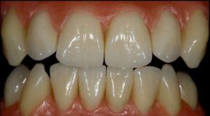 denture patients