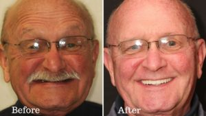 The before and after photos of a cancer survivor's dental treatment.