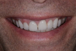 "The healthy patient of this ""missing tooth"" case study."