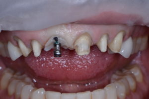"Existing restorations were removed for this ""missing tooth"" case study."