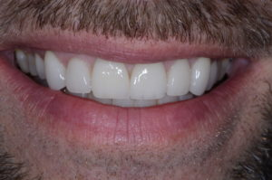 """Missing Tooth"" case study Post Op Final"