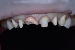 """Missing Tooth"" case study Retracted operative"