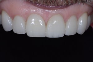 """Missing Tooth"" case study after retracted"