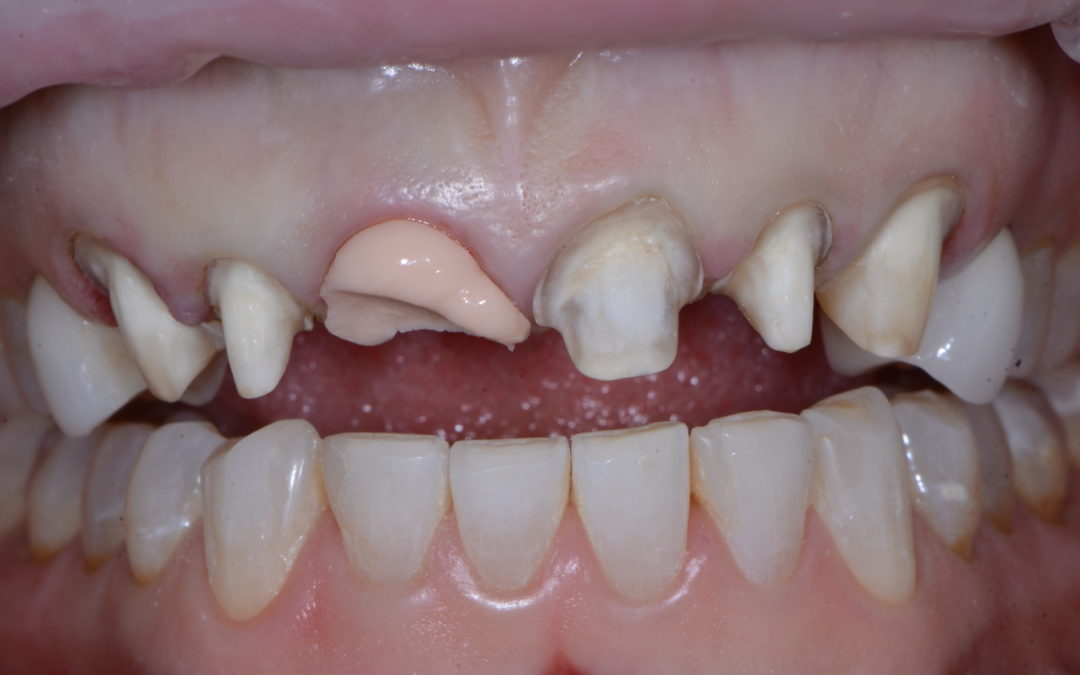 """""""Missing Tooth….Found Smile"""" A Case Study"""