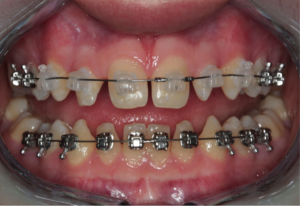 This formula will help you give an orthodontist feedback about the space you want to bond or veneer in a peg lateral case.