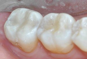 Venus Diamond Occlusals on both molars