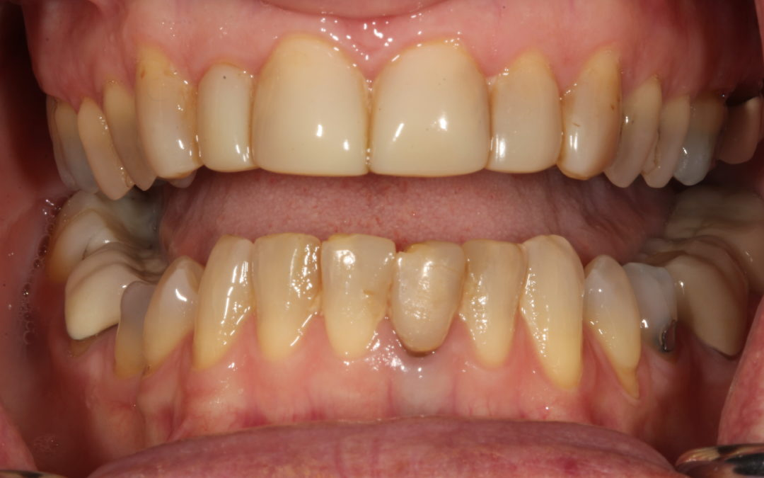 """Won't my insurance cover this?""–  Anterior All-Ceramic From Case Selection to Cementation"