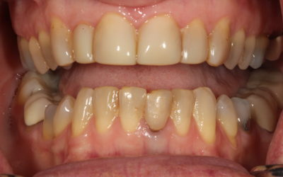 """""""Won't my insurance cover this?""""–  Anterior All-Ceramic From Case Selection to Cementation"""