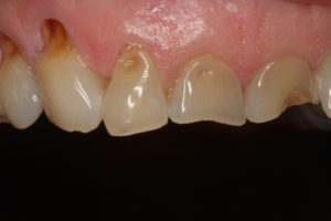 Abfraction and erosion due to swishing - dental occlusion